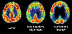 Alzheimer's Myths